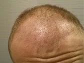 trapianto capelli chrisman