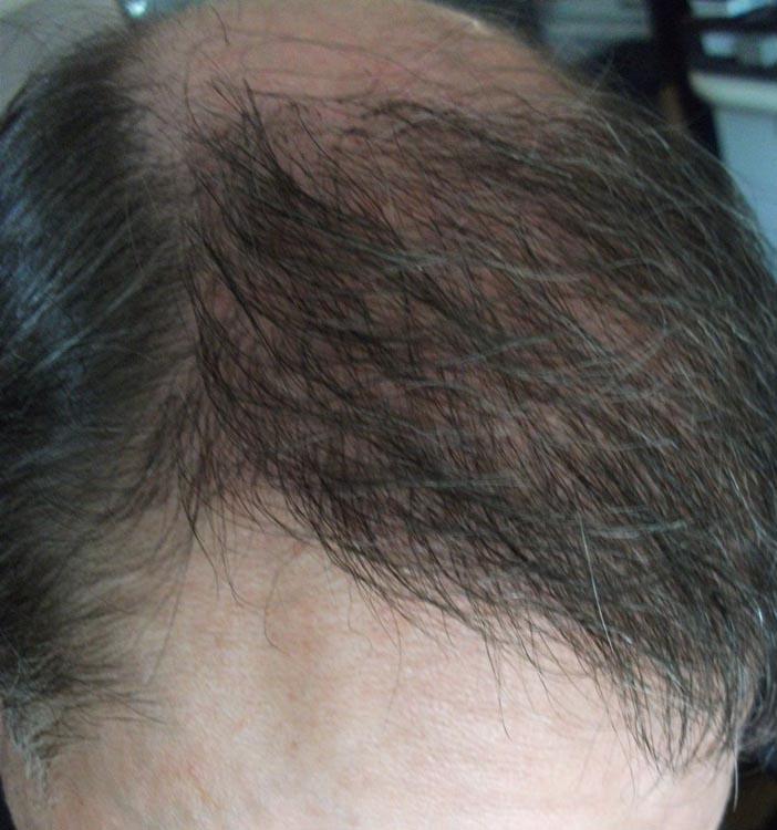 trapianto capelli cinquepesci